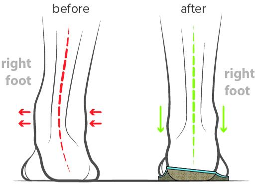 before and after wearing the orthotics prescribed by urban body physiotherapy in solihull