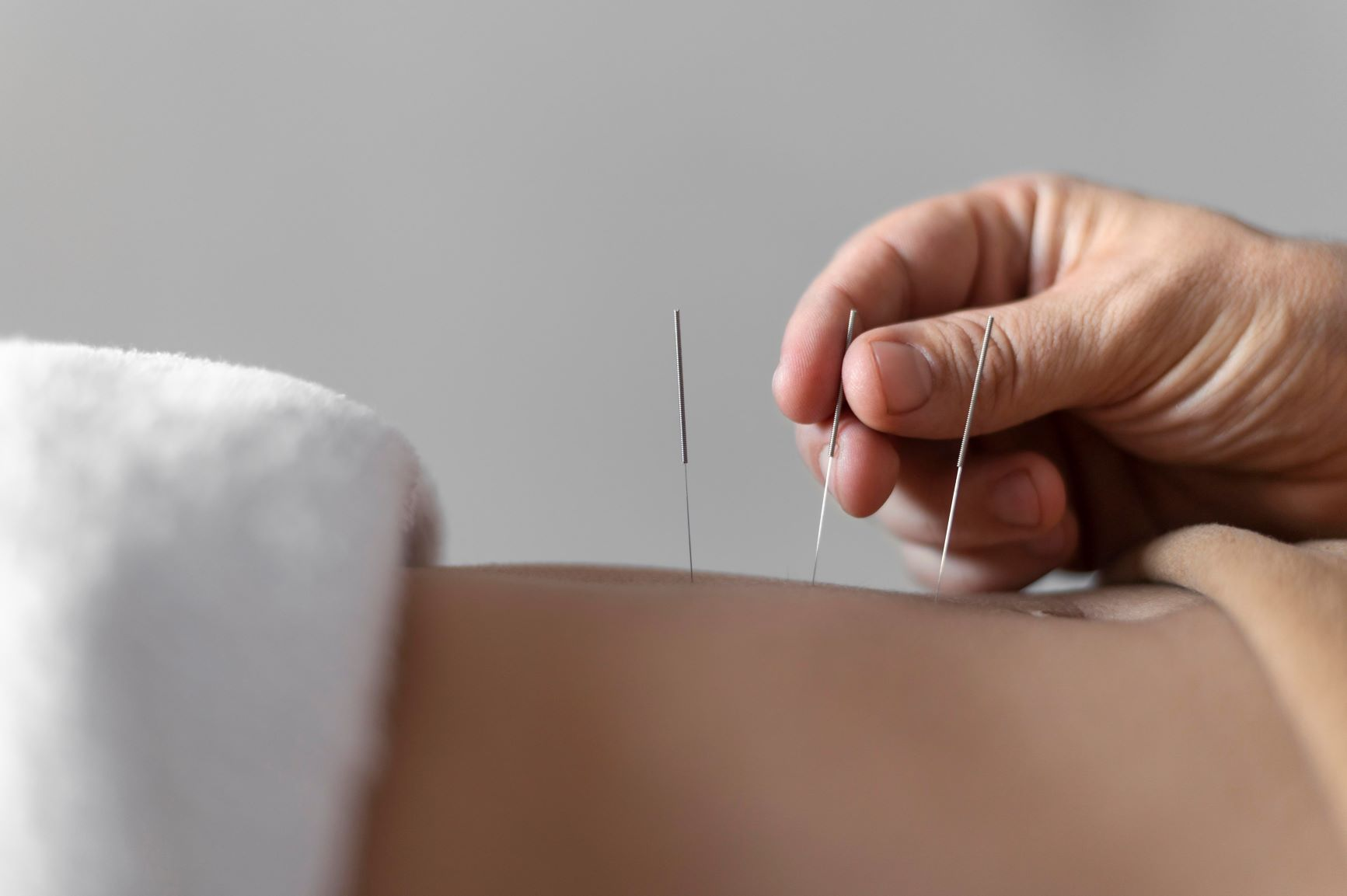 Acupuncture services at Urban Body Physiotherapy  and Rehabilitation Clinic in Solihull